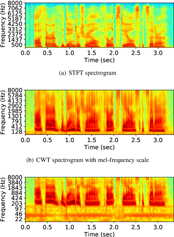 Figure 4 for Training a Neural Speech Waveform Model using Spectral Losses of Short-Time Fourier Transform and Continuous Wavelet Transform