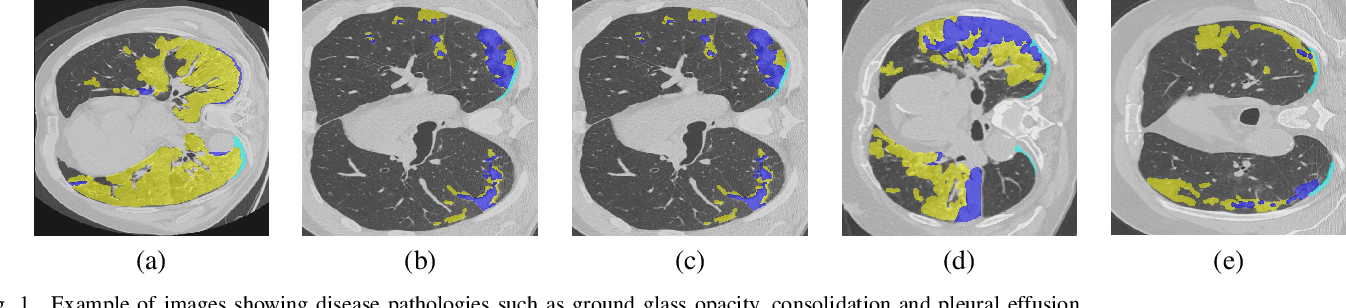 Figure 1 for CT Image Synthesis Using Weakly Supervised Segmentation and Geometric Inter-Label Relations For COVID Image Analysis