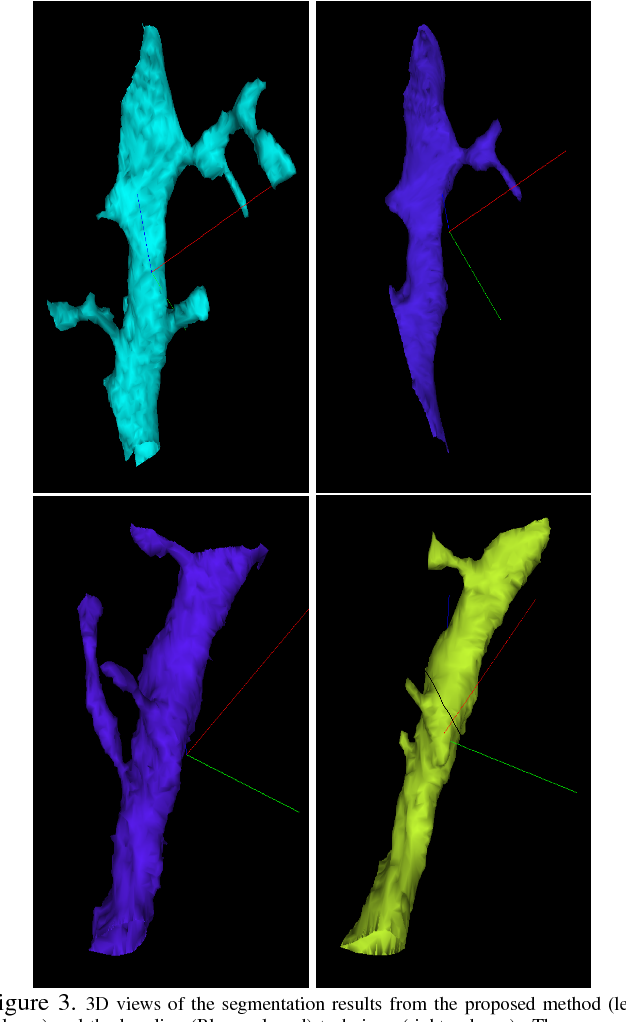Figure 3 for Anisotropic EM Segmentation by 3D Affinity Learning and Agglomeration