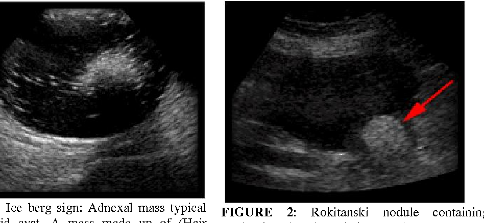 Figure 2 from DIAGNOSTIC VALUE OF SONOGRAPHY IN OVARIAN ...