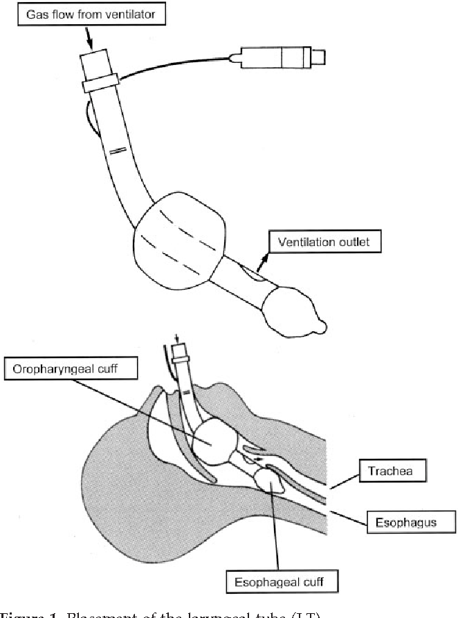 Figure 1 From A Comparison Of The Laryngeal Tube With The Laryngeal