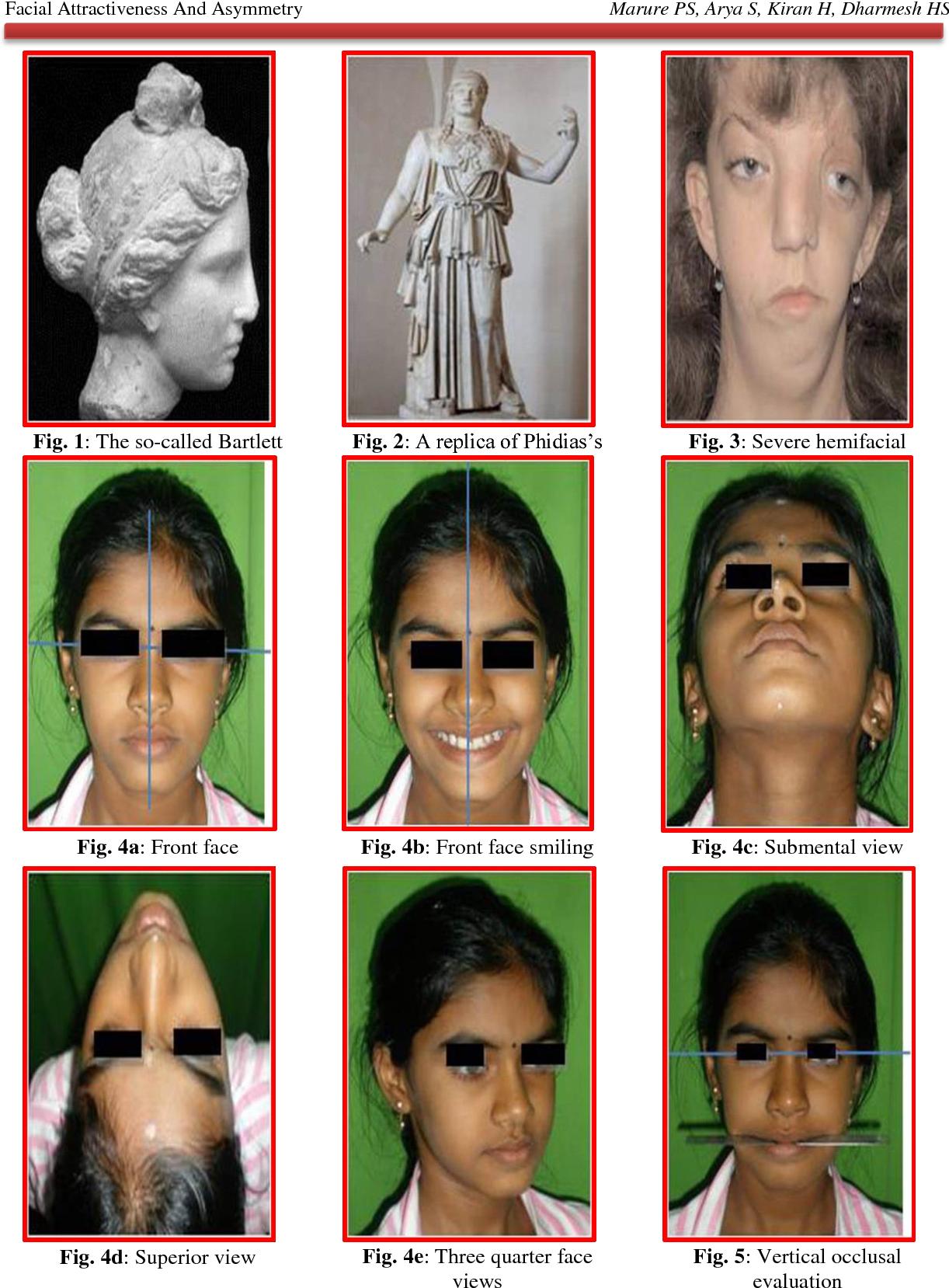 Facial asymmetry icd 9