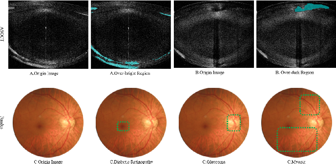 Figure 1 for Attention-based Saliency Hashing for Ophthalmic Image Retrieval