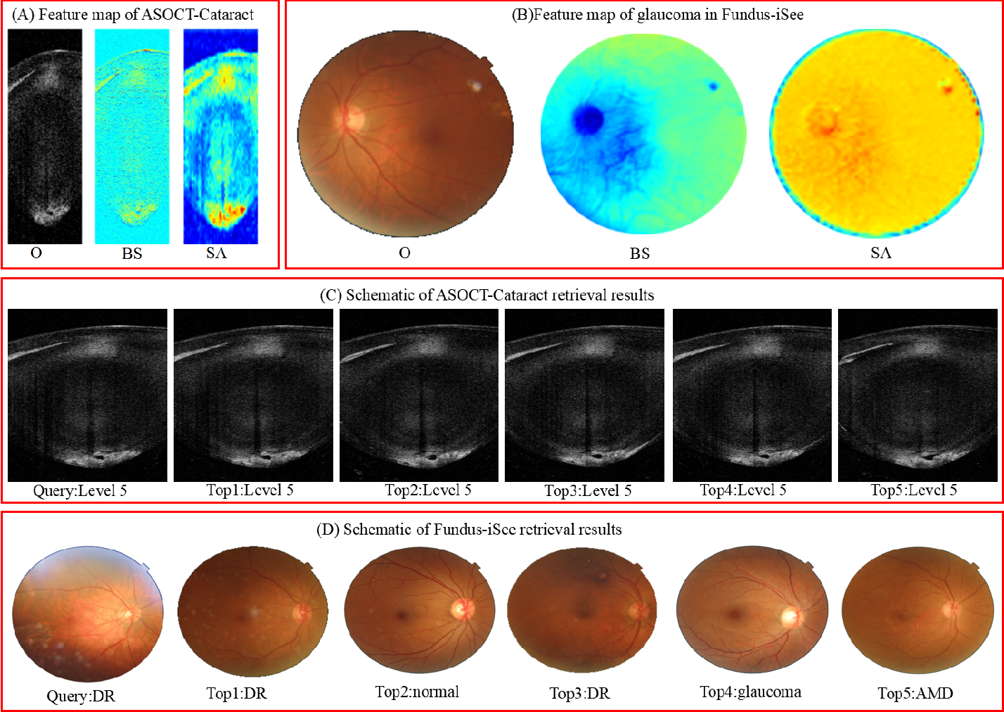 Figure 4 for Attention-based Saliency Hashing for Ophthalmic Image Retrieval