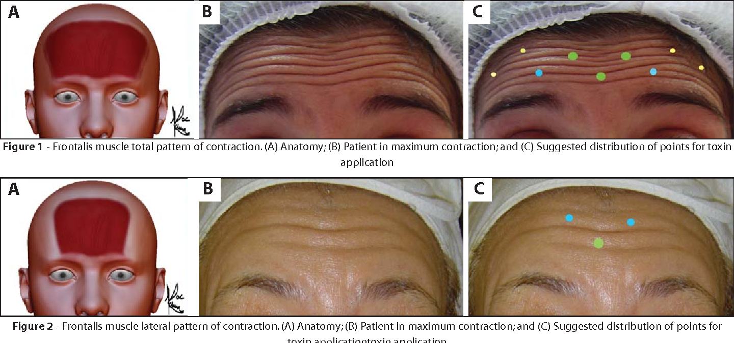 Patterns Of Contraction Of The Frontalis Muscle A Pilot Study