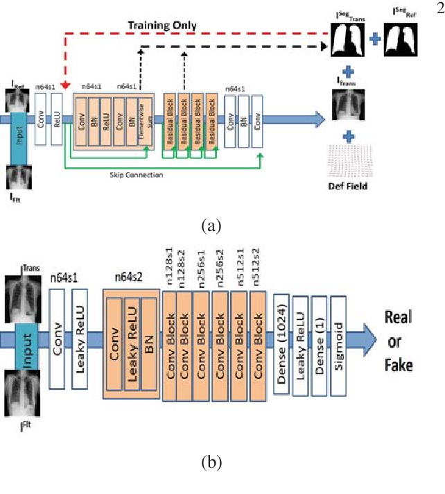 Figure 1 for Training Data Independent Image Registration With GANs Using Transfer Learning And Segmentation Information