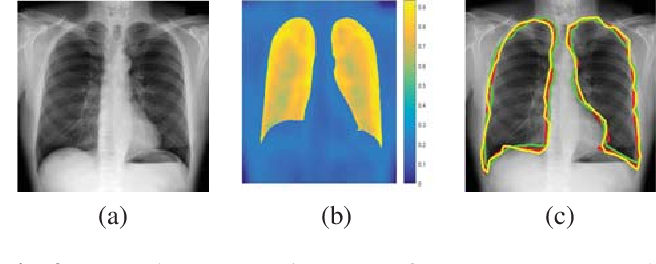 Figure 3 for Training Data Independent Image Registration With GANs Using Transfer Learning And Segmentation Information