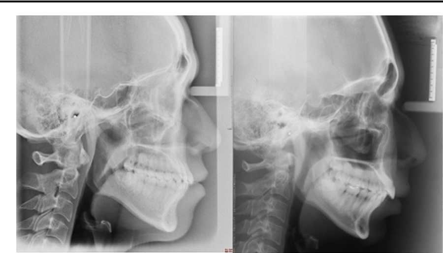 Figure 3 From Anatomical Characteristics Of Catathrenia Nocturnal