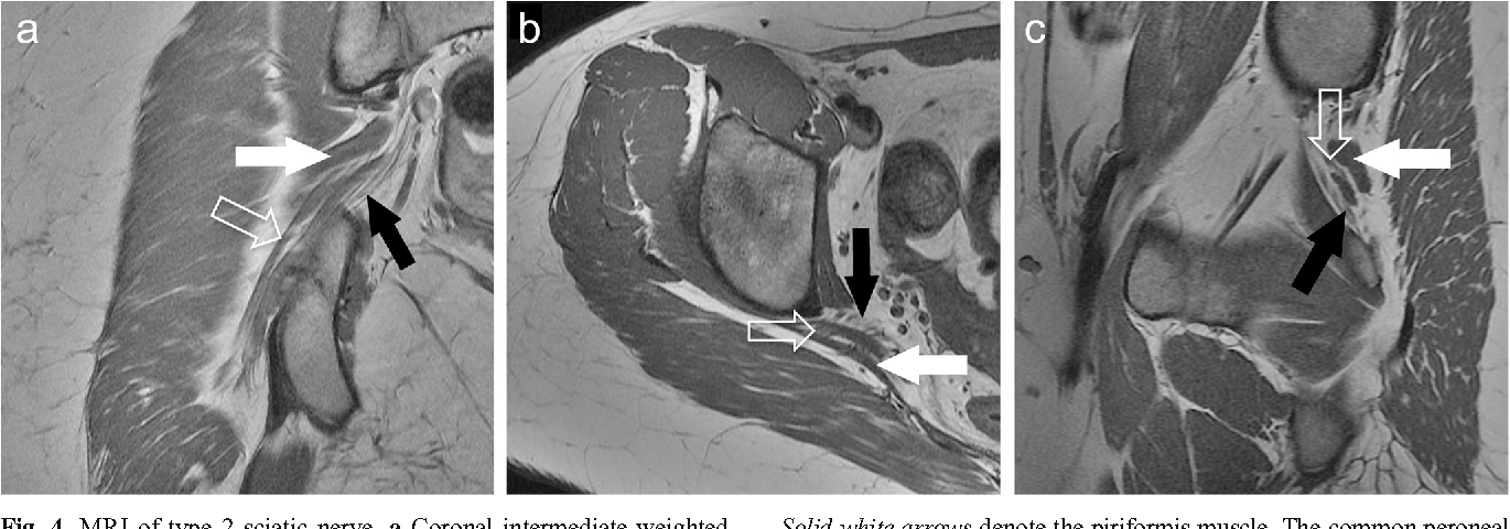 Detection and prevalence of variant sciatic nerve anatomy in ...
