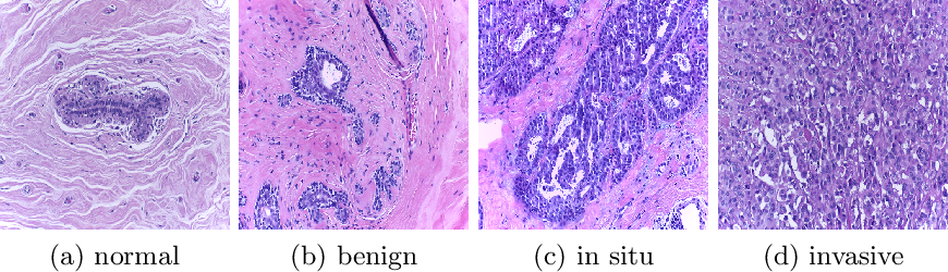 Figure 1 for Reinforced Auto-Zoom Net: Towards Accurate and Fast Breast Cancer Segmentation in Whole-slide Images
