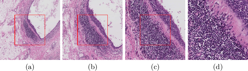 Figure 3 for Reinforced Auto-Zoom Net: Towards Accurate and Fast Breast Cancer Segmentation in Whole-slide Images