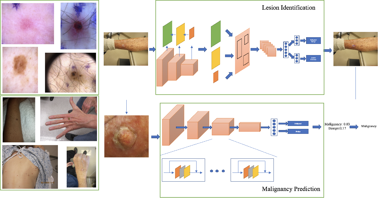 Figure 1 for Malignancy Prediction and Lesion Identification from Clinical Dermatological Images