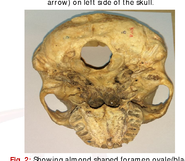 Figure 1 From Morphometric And Morphological Analysis Of Foramen