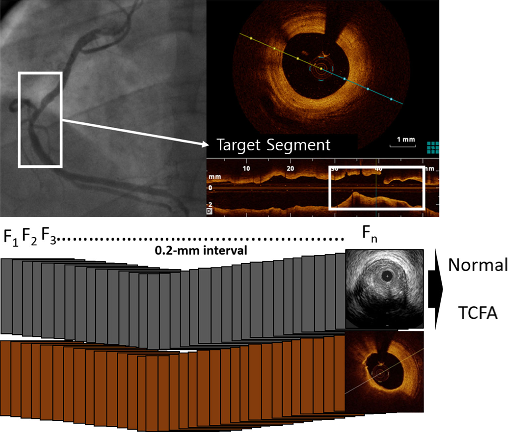 Figure 3 for Automated detection of vulnerable plaque in intravascular ultrasound images