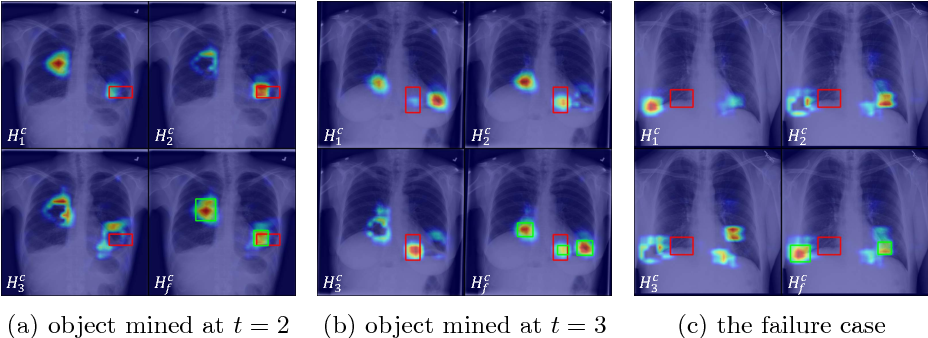 Figure 4 for Iterative Attention Mining for Weakly Supervised Thoracic Disease Pattern Localization in Chest X-Rays
