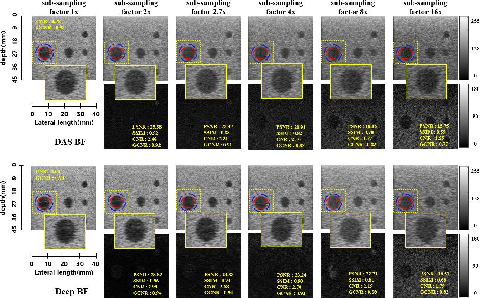 Figure 4 for Deep Learning-based Universal Beamformer for Ultrasound Imaging