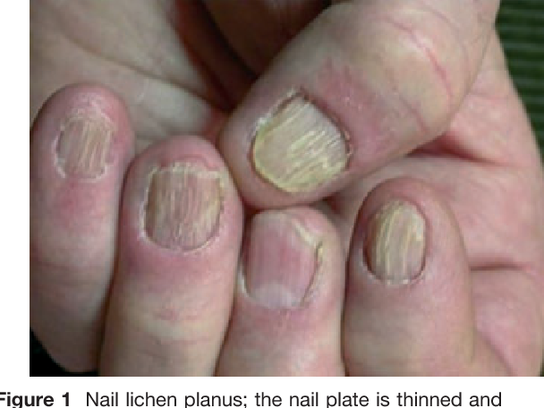 Figure 1 from Nail lichen planus: epidemiological, clinical ...