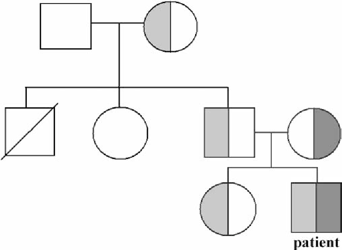 Fig. 1 Pedigree. Mutation A fi C at codon 38 of the Gc gene (light shading) associated with the substitution of Thr to Pro, a 222 to 225 four base pair deletion in the Ac-gene (dark shading)