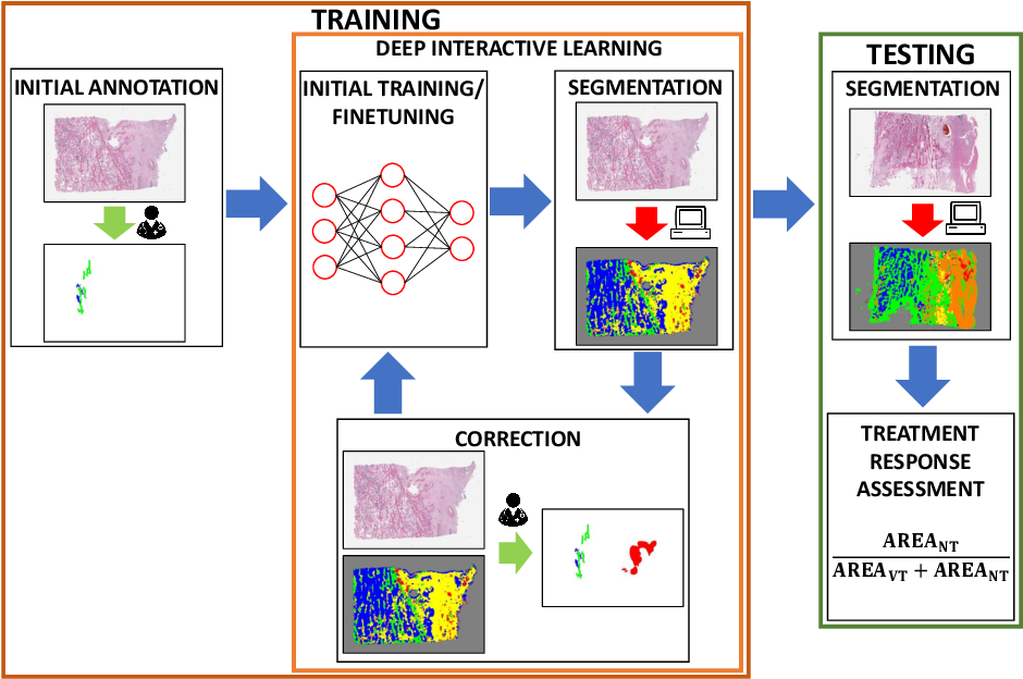 Figure 1 for Deep Interactive Learning: An Efficient Labeling Approach for Deep Learning-Based Osteosarcoma Treatment Response Assessment