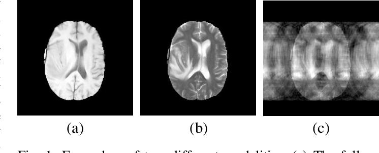 Figure 1 for Multi-modal Aggregation Network for Fast MR Imaging