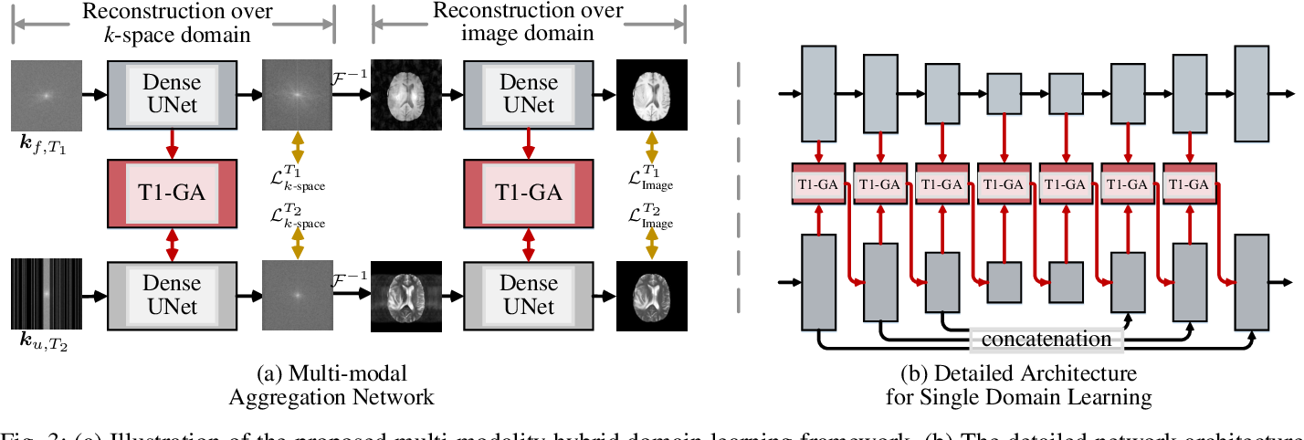 Figure 3 for Multi-modal Aggregation Network for Fast MR Imaging