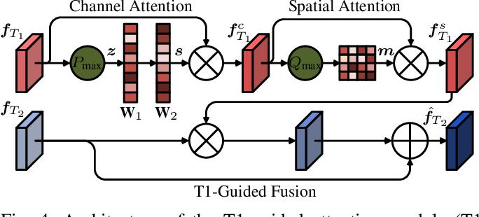 Figure 4 for Multi-modal Aggregation Network for Fast MR Imaging