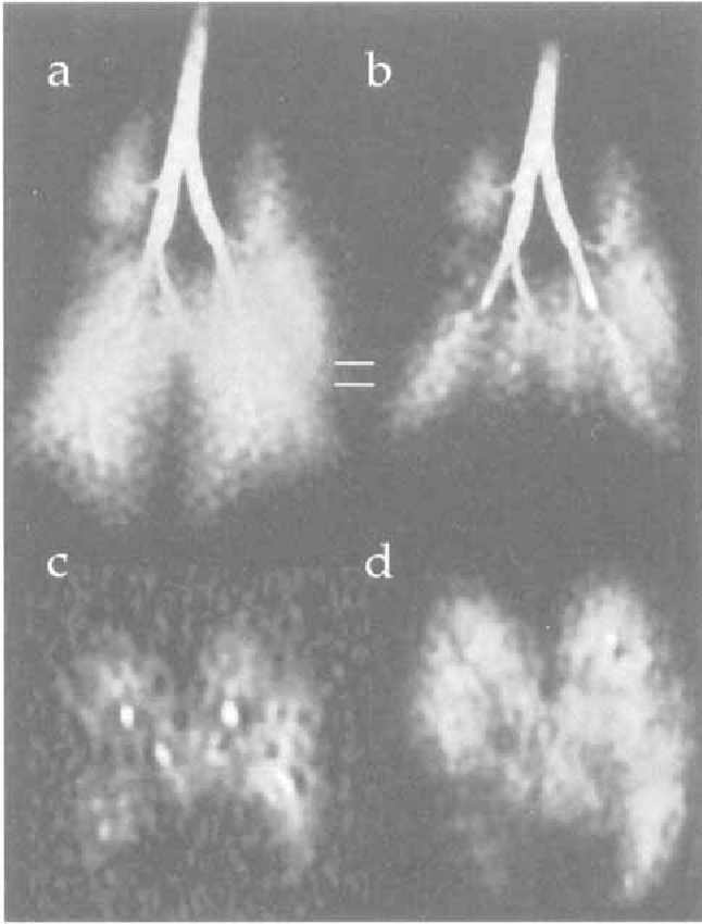 Dynamics of magnetization in hyperpolarized gas MRI of the lung