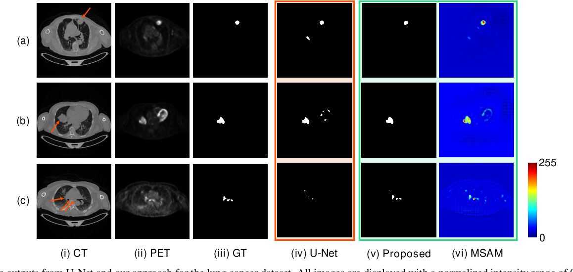 Figure 2 for Multimodal Spatial Attention Module for Targeting Multimodal PET-CT Lung Tumor Segmentation