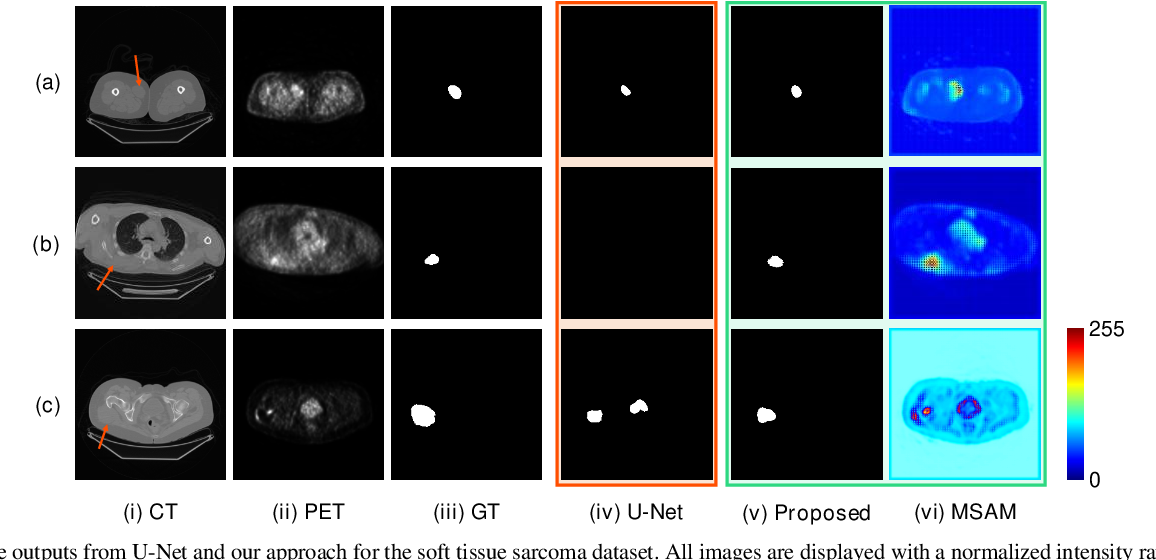 Figure 3 for Multimodal Spatial Attention Module for Targeting Multimodal PET-CT Lung Tumor Segmentation