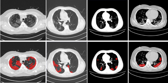 Figure 1 for Exploiting Shared Knowledge from Non-COVID Lesions for Annotation-Efficient COVID-19 CT Lung Infection Segmentation
