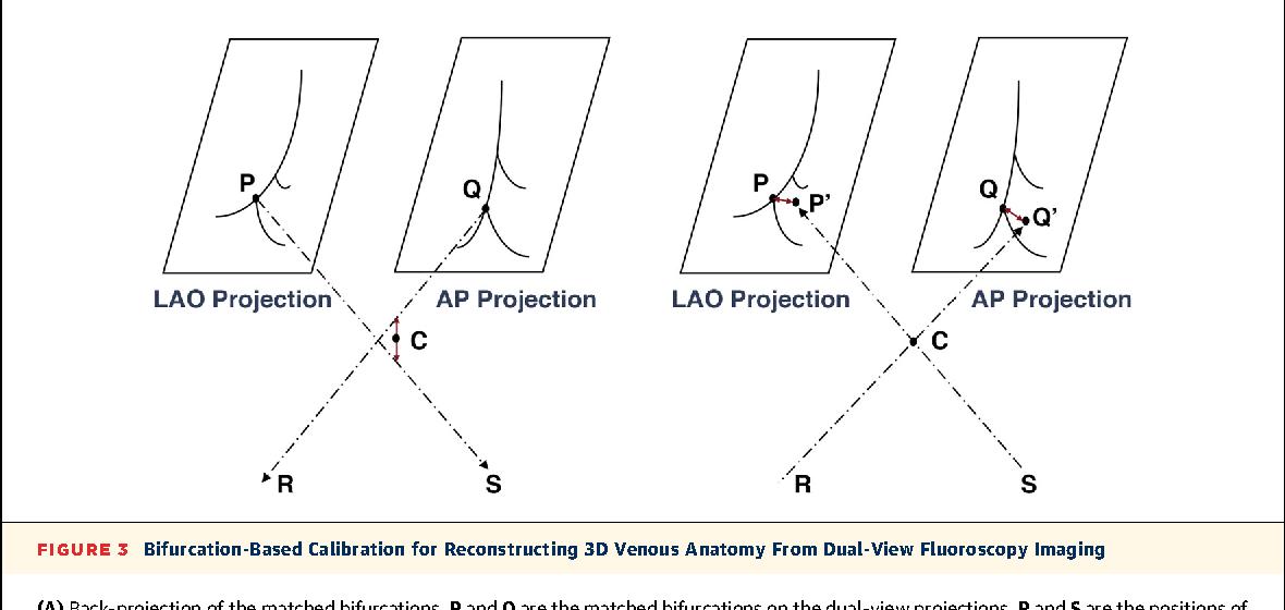 3D fusion of LV venous anatomy on fluoroscopy venograms with ...