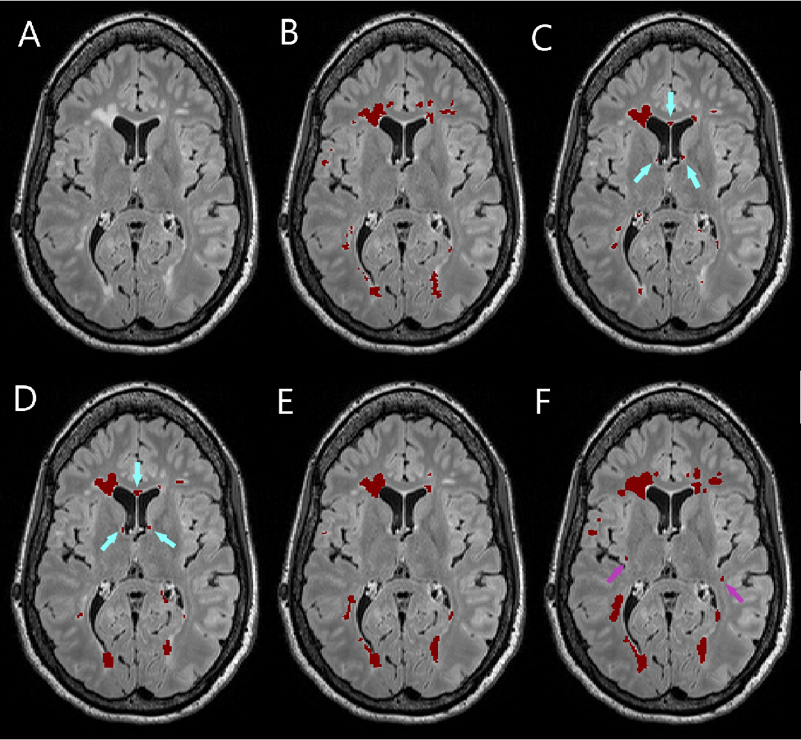 Figure 2 for Simultaneous lesion and neuroanatomy segmentation in Multiple Sclerosis using deep neural networks