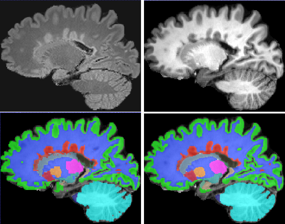 Figure 3 for Simultaneous lesion and neuroanatomy segmentation in Multiple Sclerosis using deep neural networks