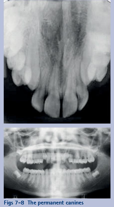 Figs 7-8 The permanent canines 'normalised' and eventually erupted into the line of the arch