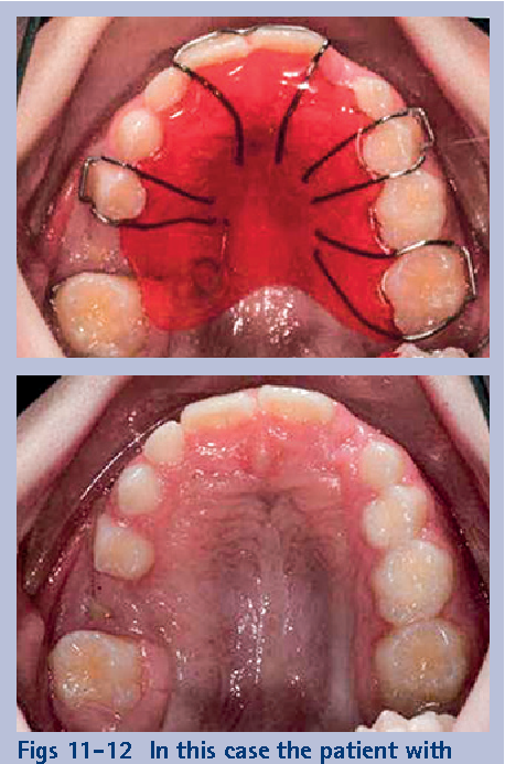 Figs 11-12 In this case the patient with fitted with an upper removable appliance (51) to tip the 15 distally to allow surgical access to remove the 55