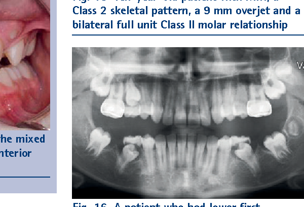 Fig. 16 A patient who had lower first permanent molars removed to encourage spontaneous space closure