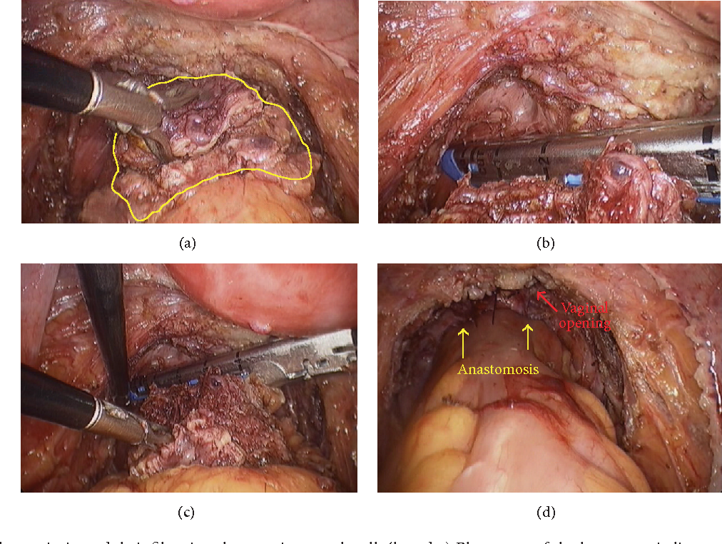 spontaneous healing of a rectovaginal fistula developing after