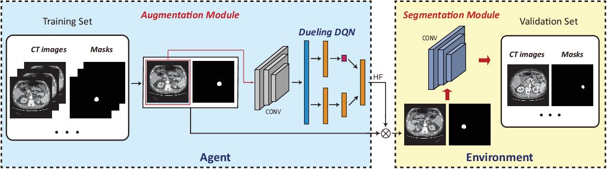 Figure 1 for Automatic Data Augmentation via Deep Reinforcement Learning for Effective Kidney Tumor Segmentation
