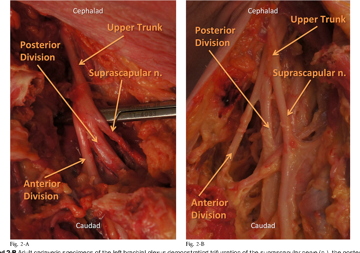 Surgical Anatomy of the Supraclavicular Brachial Plexus. - Semantic ...