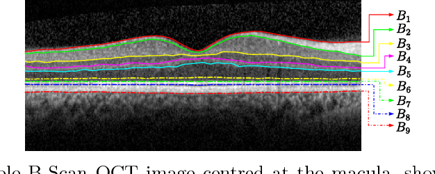 Figure 4 for OCT segmentation: Integrating open parametric contour model of the retinal layers and shape constraint to the Mumford-Shah functional