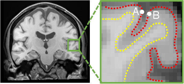 Figure 1 for Learnable Pooling in Graph Convolution Networks for Brain Surface Analysis