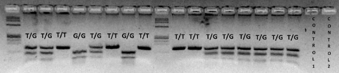 Figure 1. PCR-RFLP to determine MDM2 SNP309 polymorphism. MDM2 SNP309 T allele is not cleaved by MspA1I endonuclease and generates a single fragment of 155 bp. The MDM2 SNP309 G allele is cleaved by MspA1I and generates two small fragments of 101 and 54 bp. The MDM2 SNP309 heterozygote displays three fragments of 155, 101 and 54 bp. doi:10.1371/journal.pone.0082283.g001