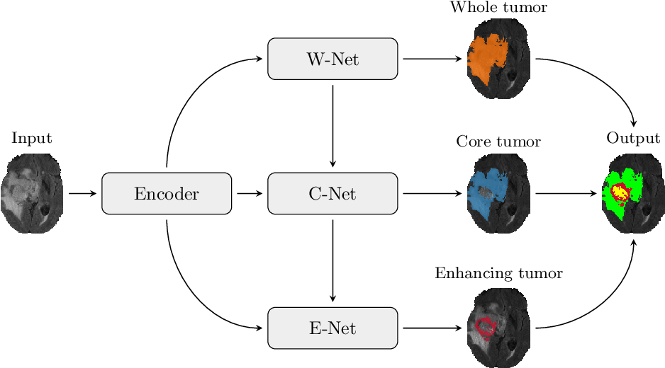 Figure 1 for Multi-Decoder Networks with Multi-Denoising Inputs for Tumor Segmentation