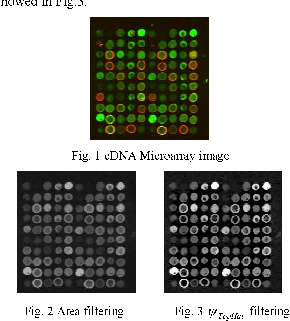 Cdna Microarray Image Processing Using Spot Centroid Of Intensity