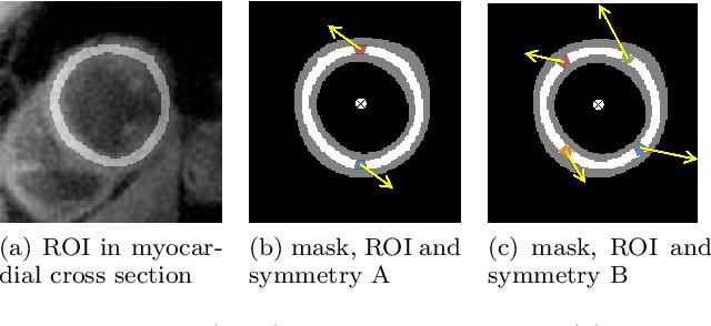 Figure 1 for Translational Motion Compensation for Soft Tissue Velocity Images