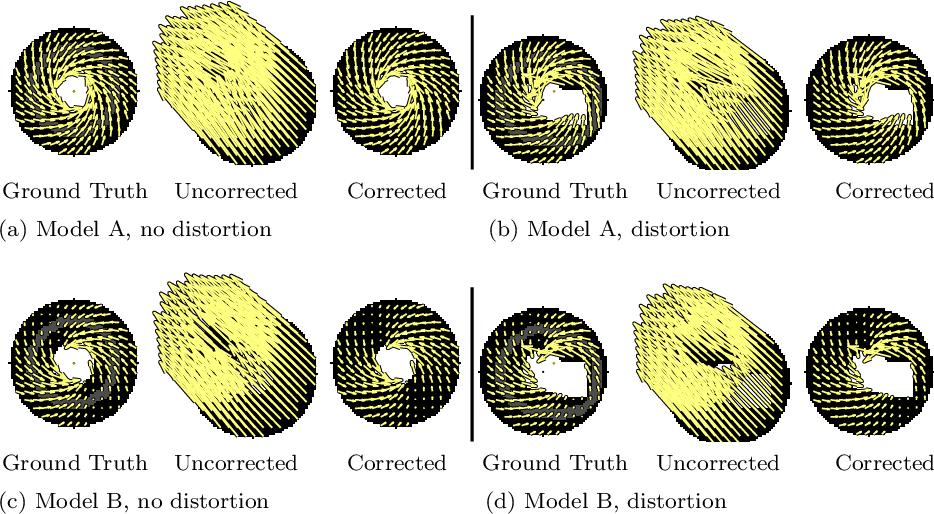 Figure 3 for Translational Motion Compensation for Soft Tissue Velocity Images