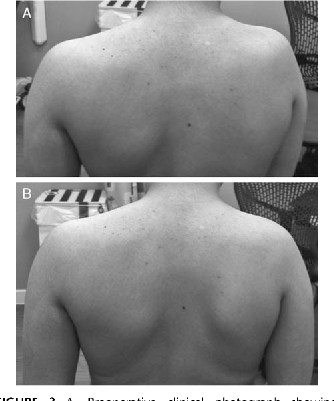 Image result for clavicle lengthening