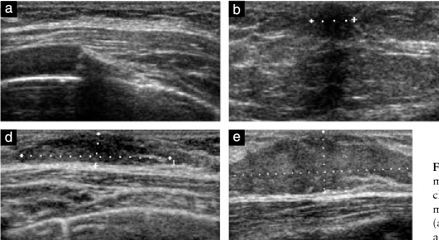 Utility of breast ultrasonography in the diagnostic work-up