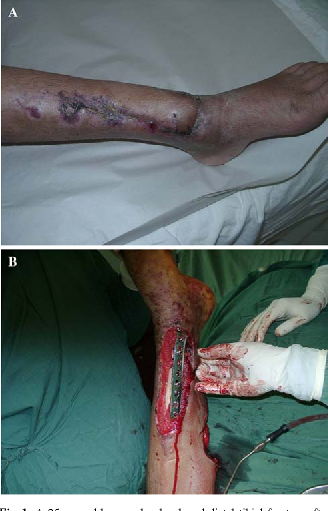 Fig. 1 A 25-year-old man who developed distal tibial fracture after accident. a On the day of arrival Wxation was done with LCP but with long conventional incision. b Few days after operation developed soft tissue loss with exposed plate