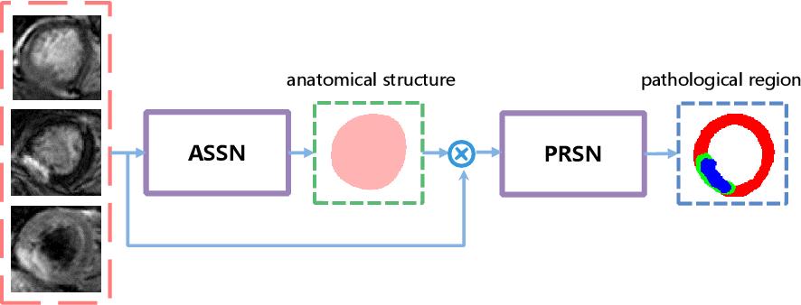 Figure 1 for Multi-Modality Pathology Segmentation Framework: Application to Cardiac Magnetic Resonance Images